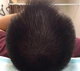 治療開始12ヶ月後